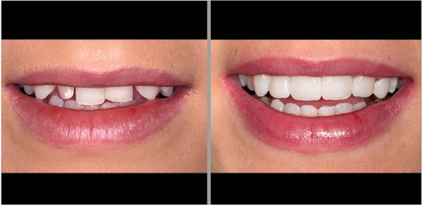Dental Crown 101 What To Know Before The Procedure